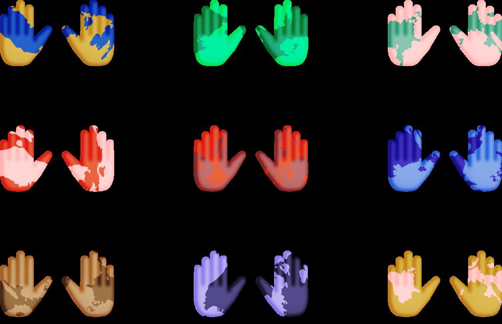 vitiligoforbundet händer
