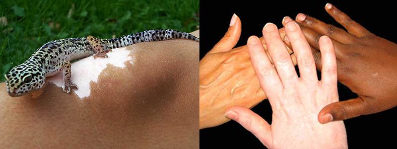Svenska Vitiligoförbundet, bildspel